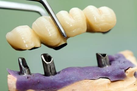 keramicki most na zubnim implantima