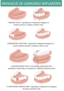Indikacije za ugradnju implantata