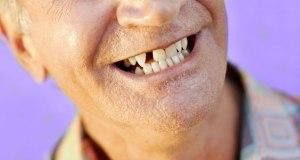nedostatak jednog zuba i ugradnja implantata
