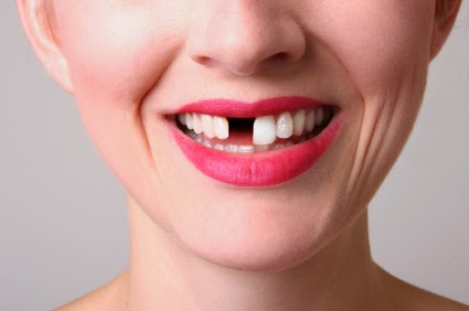 Slatko je kad nemaš zub. Samo kad si dete.