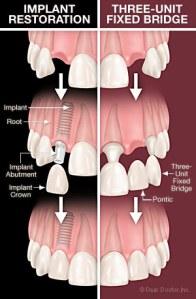 zubni implantat ili most