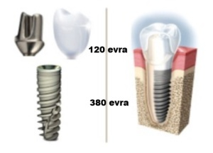 Implant sa suprastrukturom i krunicom - 500 evra